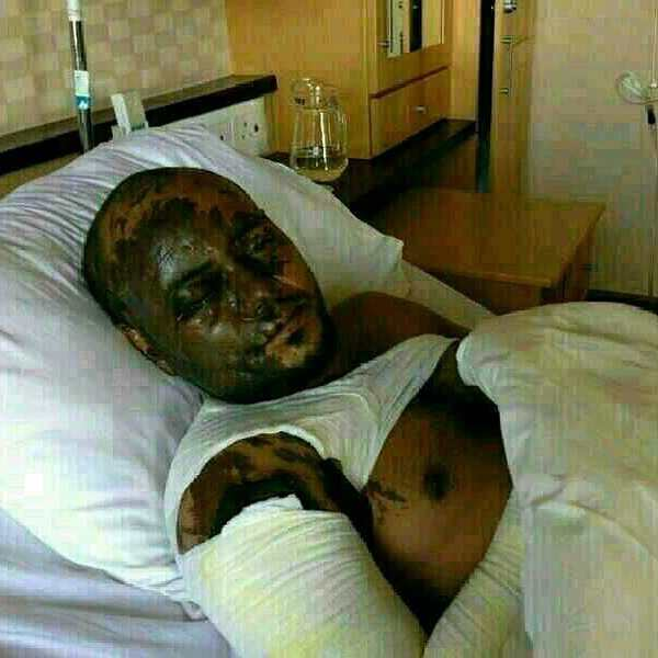 Said MOHAMED Saad is recovering at South African hospital from the acid burns